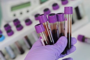 ITA Updates Tokyo 2020 Doping Test Data: Just 6 positives out of 4,255 Tested